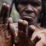 Sevilen biri öldüğünde, Dani Kabilesi'ndeki bir kadın parmağını keser