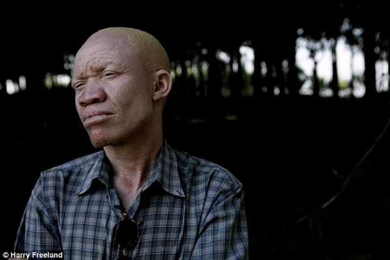 Tanzanya'nın albinoları avlanıp, vücut parçaları zenginlere satılıyor